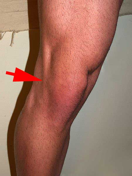 photo (wfs). This is not my knee. It's almost like it's the tendon